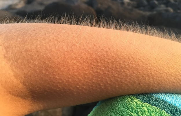 Harvard study solves the mystery of why we get goosebumps