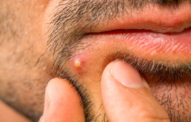 Boils: Causes, treatment and home remedies