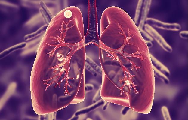 लंग कैंसर के खिलाफ एटिजोलिजुमैब ड्रग कीमोथेरेपी से ज्यादा प्रभावी और फायदेमंद: अध्ययन