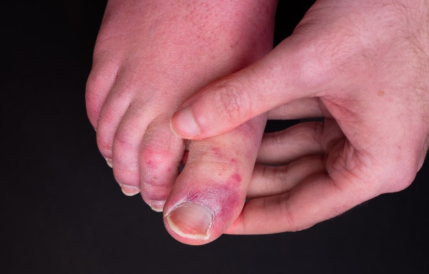 What are COVID toes?