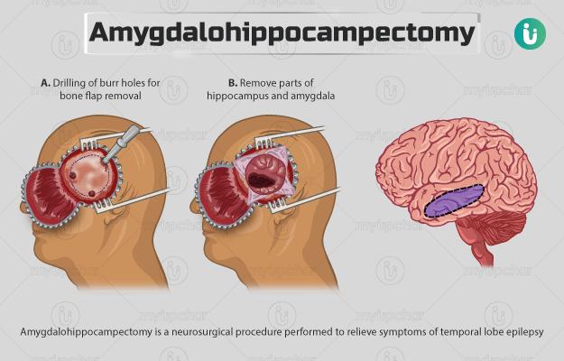 एमिग्डलोहिप्पोकैम्पेक्टमी - Amygdalohippocampectomy in Hindi