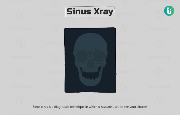 Sinus X-ray