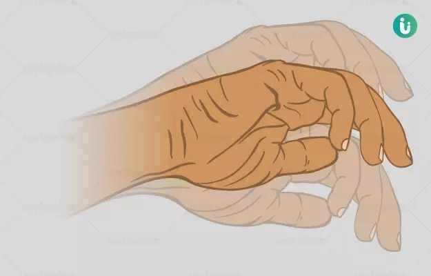 हाथ सुन्न होने का घरेलू उपाय