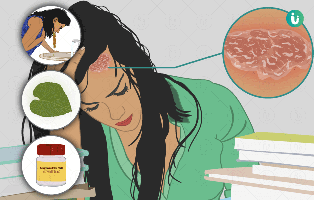 ayurvedic home remedies for psoriasis)