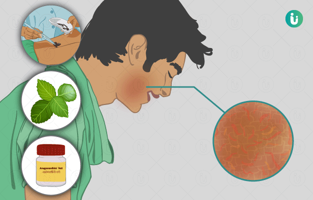 eczema meaning in bengali