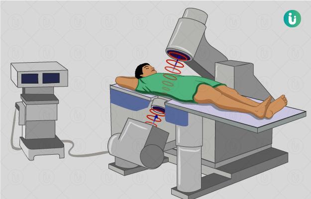 एक्स्ट्राकोर्पोरियल शॉक वेव लिथोट्रिप्सी - ESWL (Extracorporeal Shock Wave Lithotripsy) in Hindi