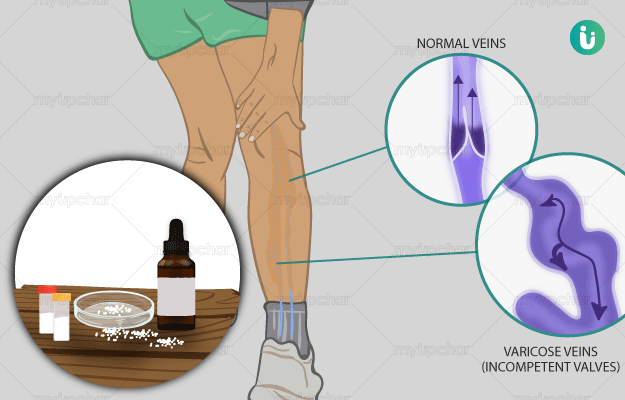 Homeopathic medicine, treatment and remedies for Varicose veins