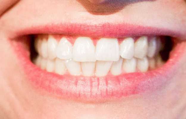 Teeth Whitening Home Remedies Tips And Precautions